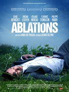 Ablations download